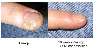 Warts on the Feet and Hands - Advanced Foot-Care & Laser Center